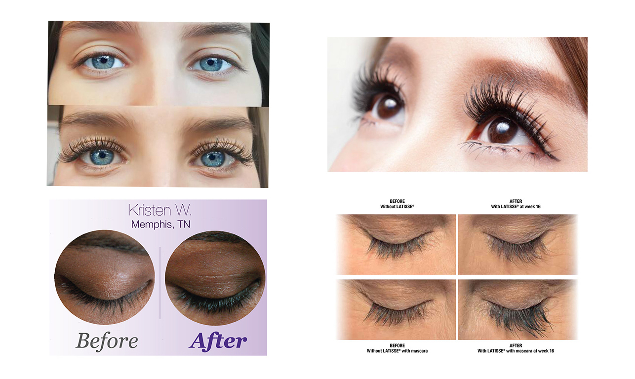 how to spot lash extensions falsies latisse amp other